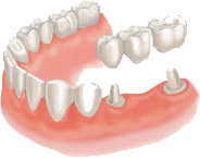 dental bridge work bristol ct