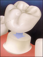 dental crowns burlington ct