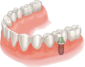 dentist implants thomaston ct