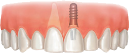 dental implants connecticut CT bristol