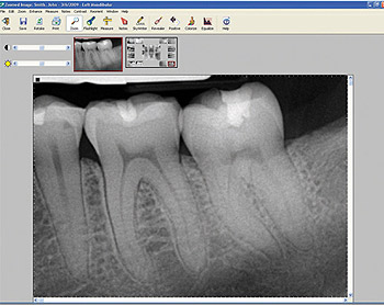 digital dental xray services unionville burlington ct